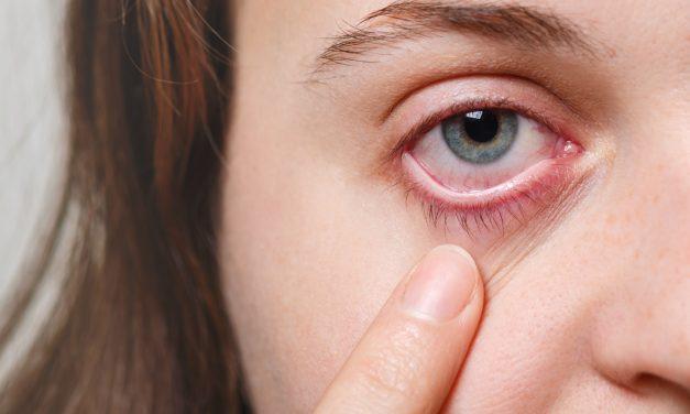 Como reconhecer os sintomas de conjuntivite